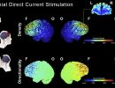 Neuromodulation of Cognition in Older Adults (The Stimulated Brain Study)