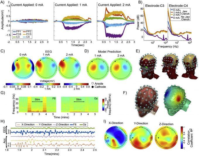 EEG tDCS